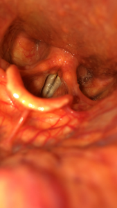 vocal folds iPhone endoscopy larynx